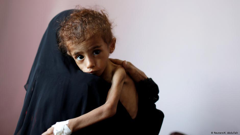 ضغوط أممية على المانحين لانتشال اقتصاد اليمن وإنقاذ اليمنيين من مجاعة قريبة الحدوث