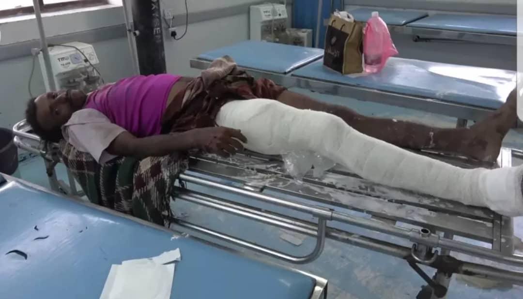 الحديدة.. مسلح تابع لجماعة الحوثي يطلق النار على مواطن وتركه ينزف في حيس