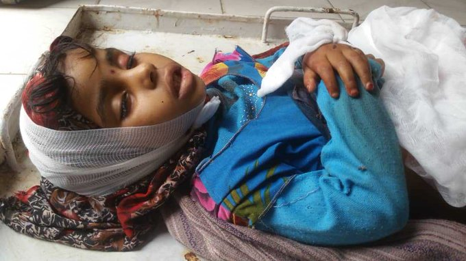 الأمم المتحدة تعلن مقتل وإصابة 2000 مدني في اليمن خلال العام الماضي