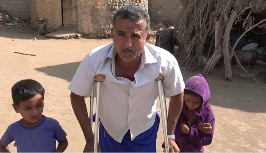"""رصاصة قناص حوثي تحوِّل """"عبد الله"""" من مُزارعٍ نشيط إلى مُعاقٍ"""