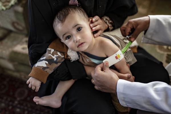 منحة يابانية لتوسيع نطاق الاستجابة التغذوية في اليمن