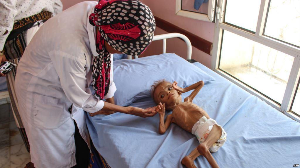 تليجراف: طفل يمني يموت كل 70 ثانية
