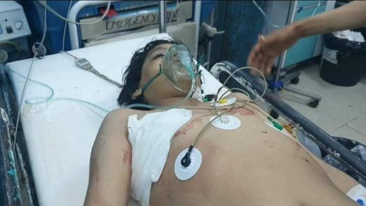 مأرب.. مقتل وإصابة 6 أطفال بصاروخ أطلقته جماعة الحوثي استهدف حياً سكنياً