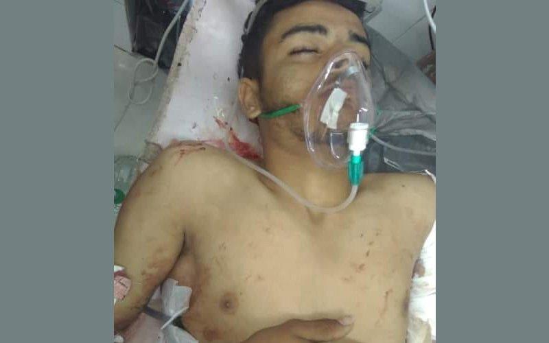 إب.. وفاة لاعب كرة قدم متأثراً بإصابته برصاص مسلح حوثي