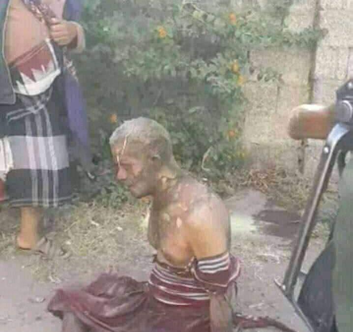 مواطن يحرق نفسه أمام محكمة شرق إب احتجاجاً على حبس نجله ظلماً من قبل جماعة الحوثي